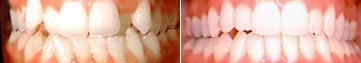 Invisalign before and after example