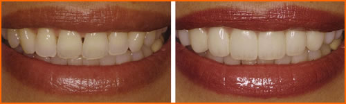 A before and after example of Veneers